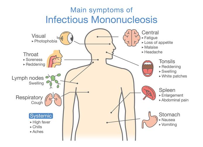 ¿Qué causa la mononucleosis?