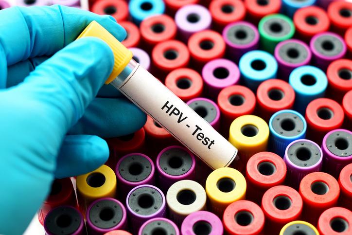 Consejos de salud para combatir las verrugas del VPH en casa