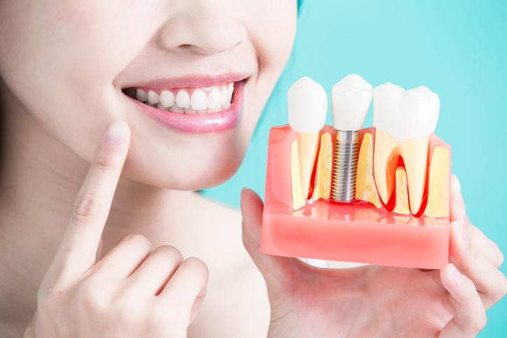 Salud bucodental: los implantes dentales
