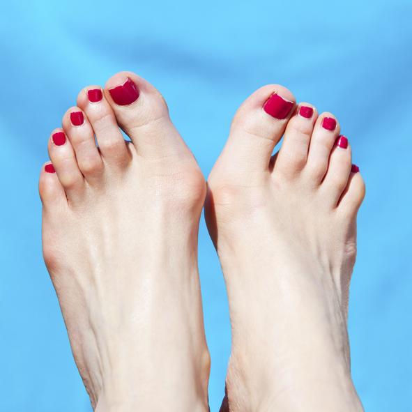 La Cirugía Mínima Invasiva para juanetes y dedos en garra