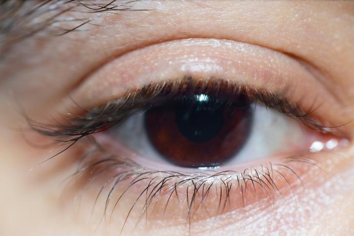 Qué es la ptosis palpebral y cuáles son sus principales tratamientos